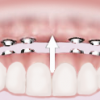 Periodontal Dental Services offered at SC Dental Group located in Surprise, Arizona