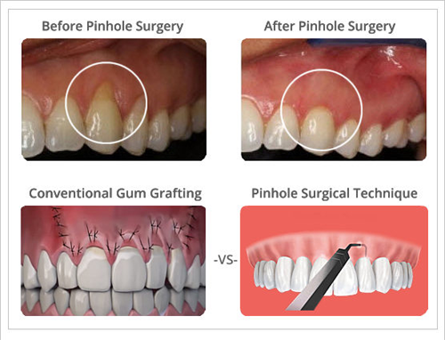 SC Dental Group Pinhole Surgery (PST) Before & After