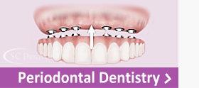 SCDentalGroup.com Periodontal Dentistry | SC Dental Group