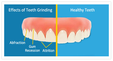 SCDentalGroup.com - Bruxism Teeth Grinding | SC Dental Group