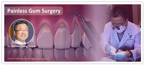 Dr. Steven Chang, pinhole surgical technique, PST, non-invasive gum surgery | SC Dental Group