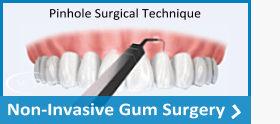 pinhole surgical technique, (PST), non-invasive gum surgery | SC Dental Group