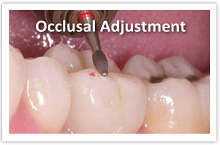 SCDentalGroup.com Occlusal Adjustment Close-up | SC Dental Group
