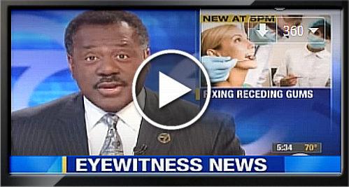 pinhole surgical technique channel 7 eyewitness news   www.SCDentalGroup.com
