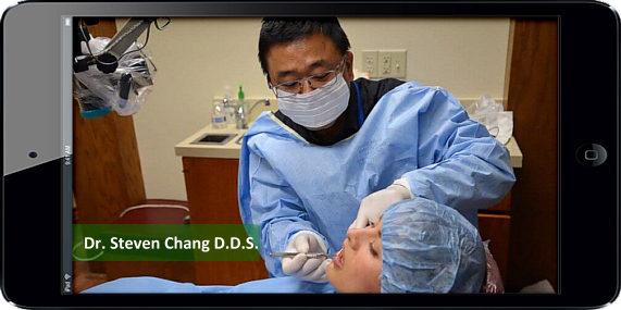 all on 4 implants procedure by Dr. Steve Chang SC Denta Group Arizona | www.SCDentalGroupc.com