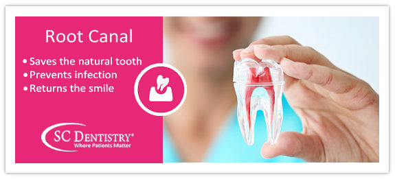 top phoenix dentists root canal dentistry | SC Dental Group