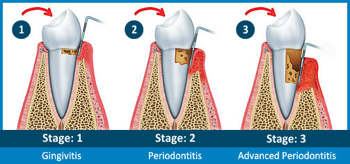 Grey stages of gum disease in arizona Dr Steven Chang | www.SCDentalGroup.com