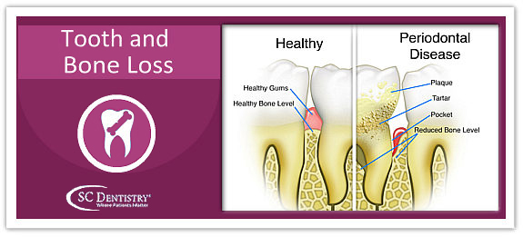 tooth and bone loss in arizona | www.SCDentalGroup.com