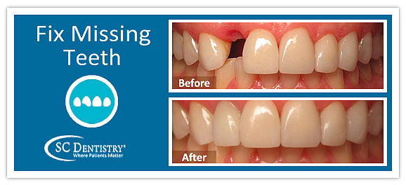 fix missing teeth in arizona | www.SCDentalGroup.com